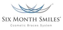 Six Month Smiles Teeth Straightening in Cornwall