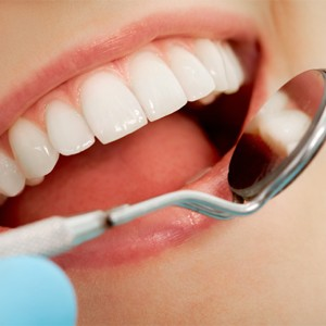 Teeth whitening Cornwall