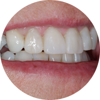 Teeth whitening and reshaping - After