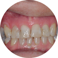 Tooth whitening and reshaping - Before